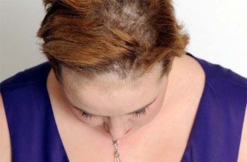 Fungus of the scalp, symptoms, diagnosis, treatment