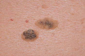 Keratosis of the skin, causes, types, symptoms, treatment