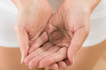 What to do with strong hair loss